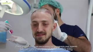 видео Бесшовная пересадка волос