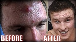 hqdefault - Bodybuilders With Bad Acne