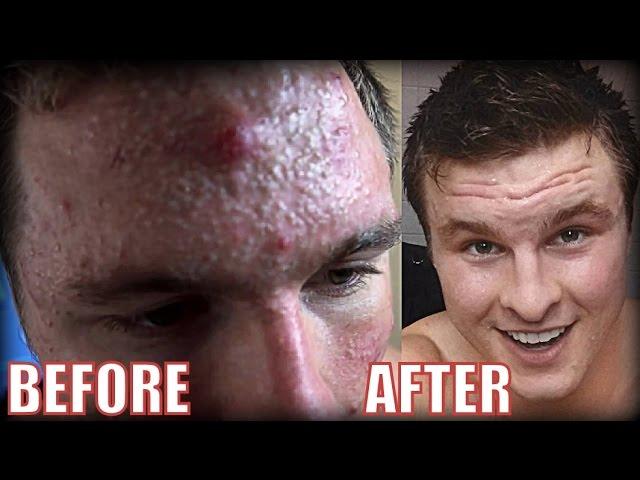 Creatine Epic Bodybuilder Acne Transformation Ft Humerusfitness