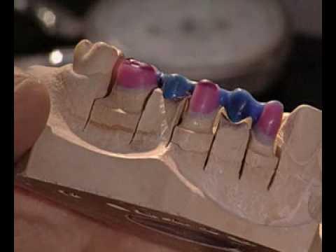 Мостовидные протезы, цены, виды зубных мостов, сколько