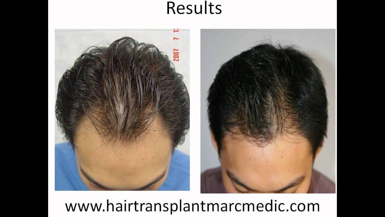 Hair Transplant Manila Philippines By Marc Medic YouTube