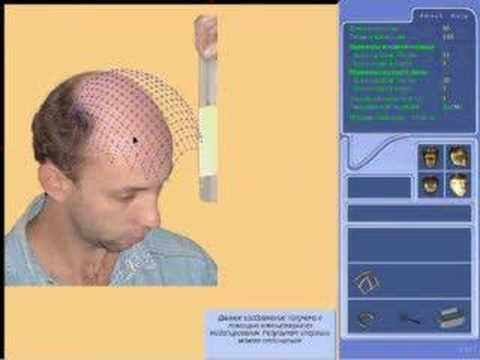 Hair replacement imaging software - YouTube