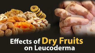 Dry Fruits for White Patches