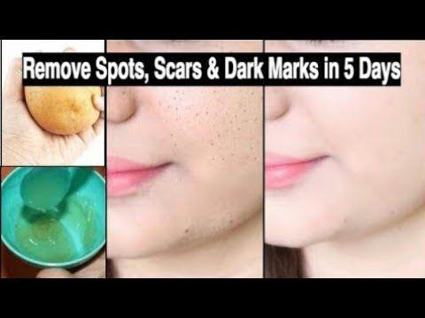 dark spots on face removal