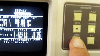 Как пользоваться офтальмологическим А -сканером Tomey AL-010!