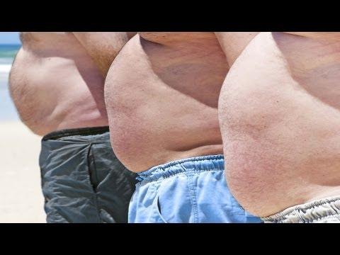 Obesity Treatments | Obesity