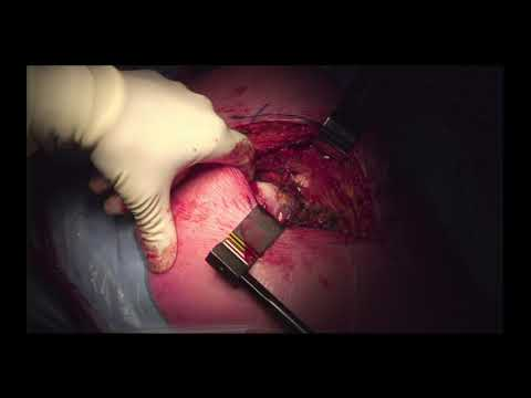 Hip Recurfacing By Dr. Koen De Smet