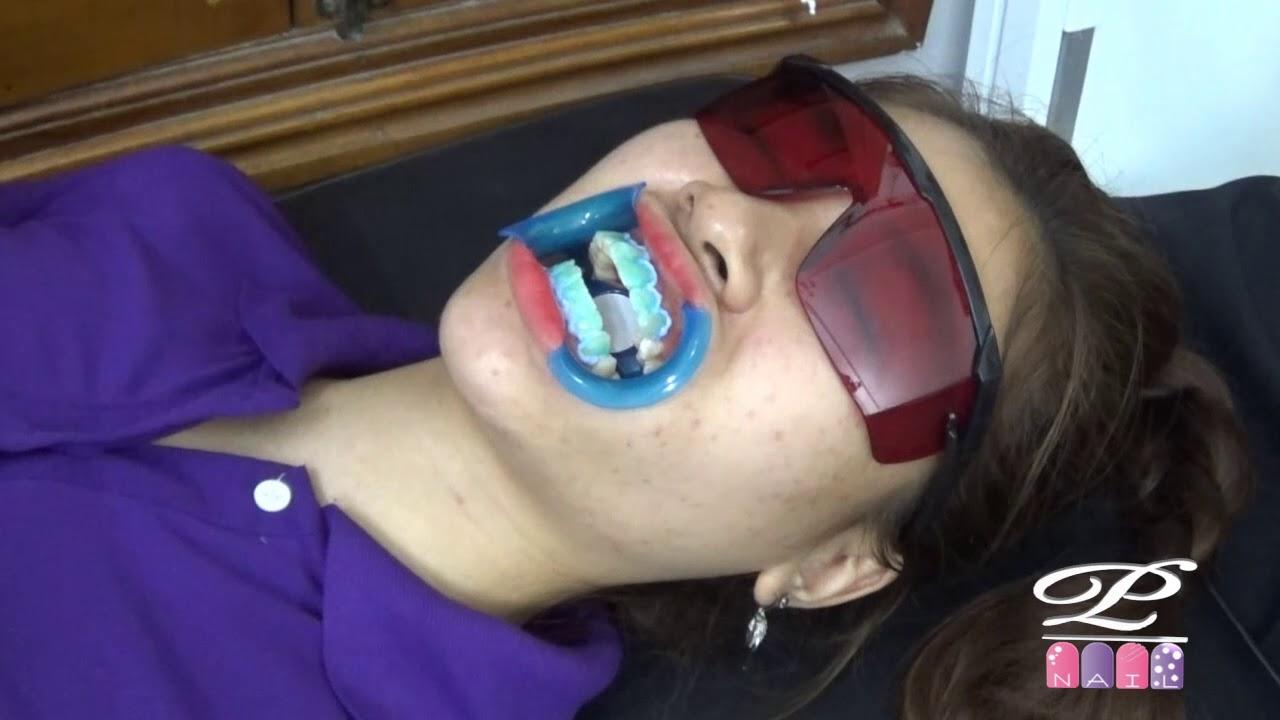 Hướng dẫn cách sử dụng sản phẩm tẩy trắng răng và quy trình đánh trắng răng, bộ đồ làm trắng răng