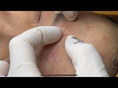Forehead Acne And Pimples | Mụn Trên Trán - SacDepSpa#157