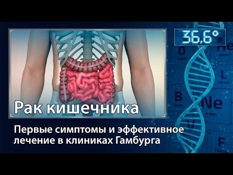 Первые симптомы рака кишечника - толстого и тонкого
