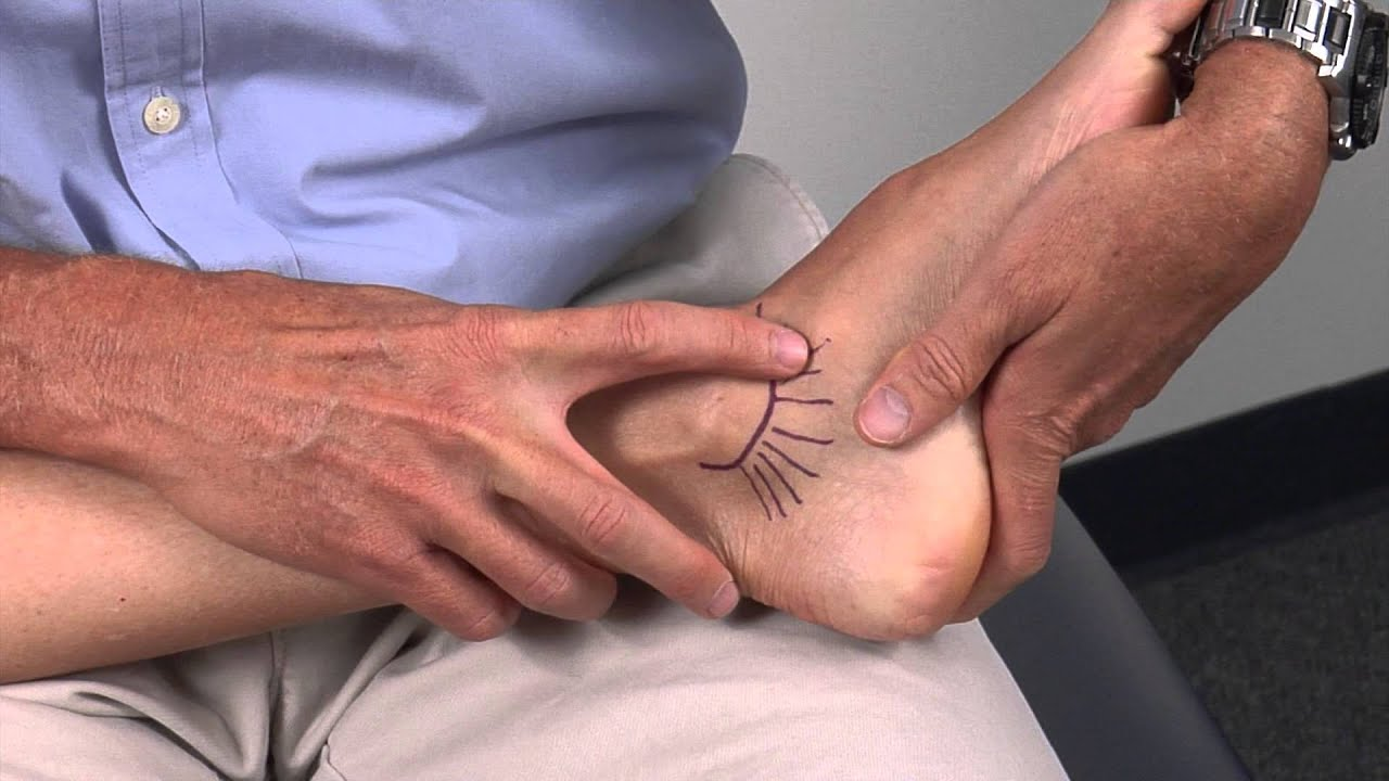 Medial Ankle Ligaments - YouTube