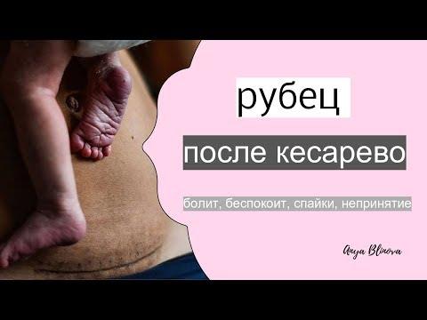 РУБЕЦ ПОСЛЕ КЕСАРЕВА | болит, ноет, спайки что делать?