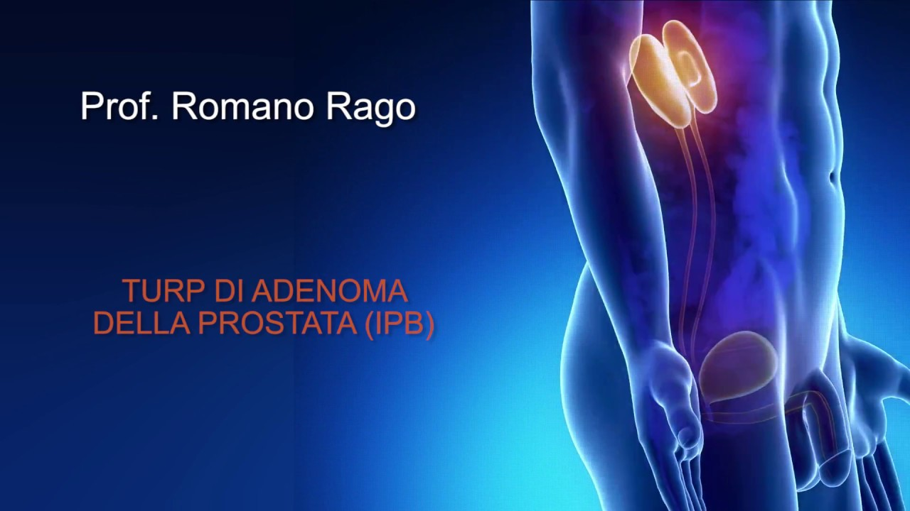 intervento prostata aquabeam