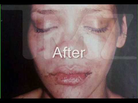 Rihanna Beat Up Pictures