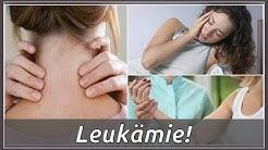 Das sind Symptome von Leukämie!