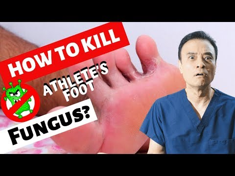 How to kill athlete's foot fungus?