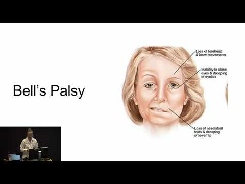 Trigeminal Neuralgia - Explained!! - Worlds most painful disease! Causes and Treatment.