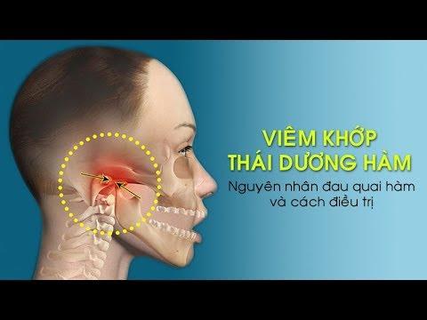 Viêm khớp thái dương hàm  (TMJ) gây đau quai hàm và cách điều trị.