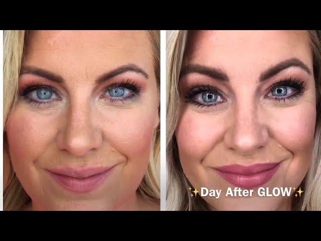 Glow Go Facial at Illume MedSpa in Glendale & Waukesha, WI