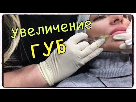 Увеличение губ ГК. ЧТО  КАТЕГОРИЧЕСКИ НЕЛЬЗЯ КОЛОТЬ В ГУБЫ ???👄 Цена процедуры.