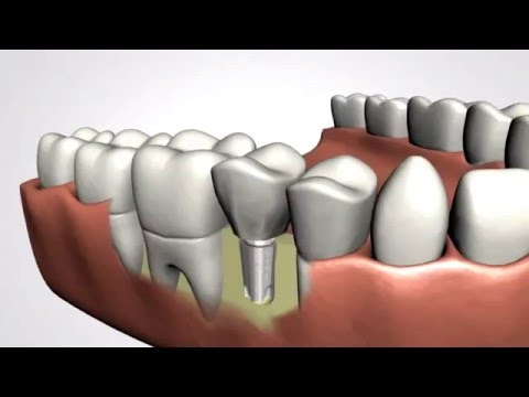 Boston Dental Implant Procedure - Step By Step