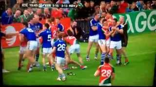 Mayo v Kerry Semi Final fan