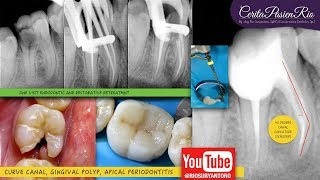 MD Epulis Removal.