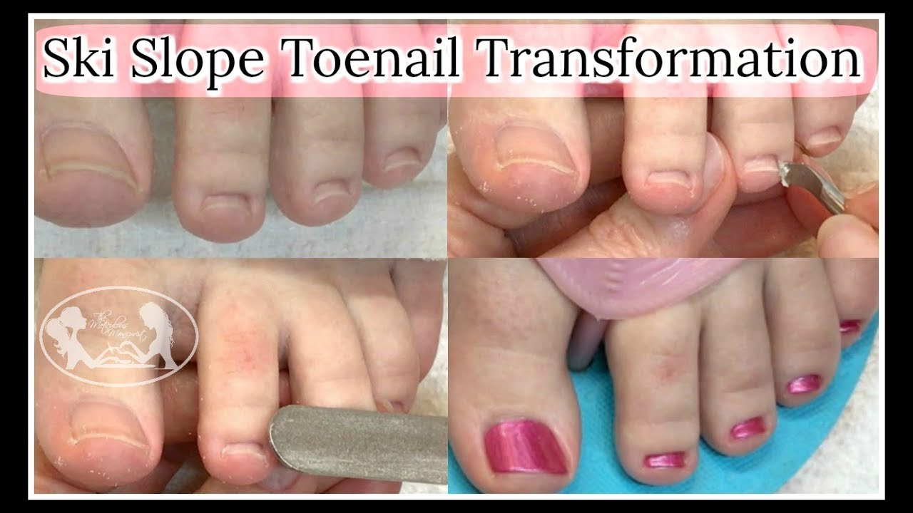 Pedicure Tutorial Optical Illusion Wide Problem Toenails That Grow Upwards Or Ski Slope Nails