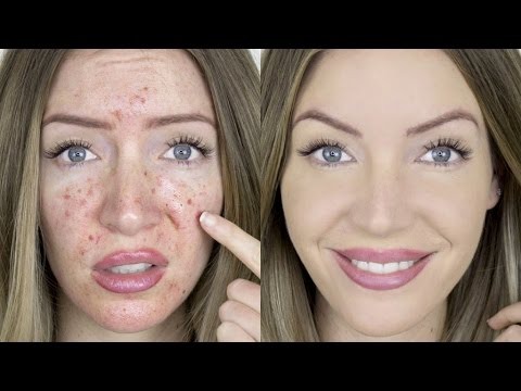 Full Coverage Acne Foundation Routine Skincare