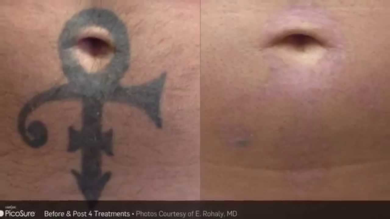 Laser Tattoo Removal Guilford Connecticut   The Langdon Center
