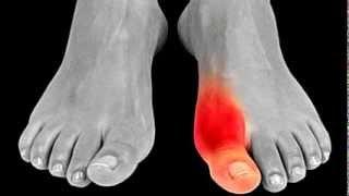 Del pie está hinchado dedo y el me duele