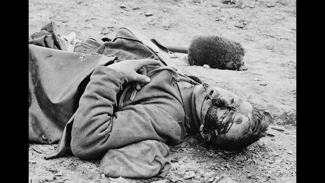 3d Stereoscopic Photographs Of Dead Confederates In Fort