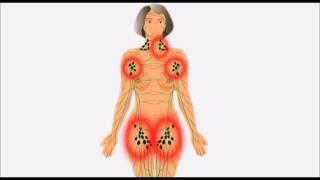 Lymphome, cancer des ganglions lymphatiques, maladie de Hodgkin, lymphome non hodgkinien