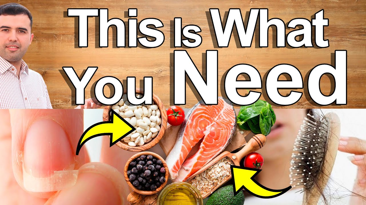 THIS IS WHAT YOUR HAIR, SKIN, and NAILS NEED - Top Supplements, Vitamin and Minerals for Beauty