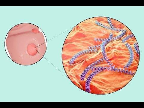 Sífilis   o que é, sintomas e tratamento