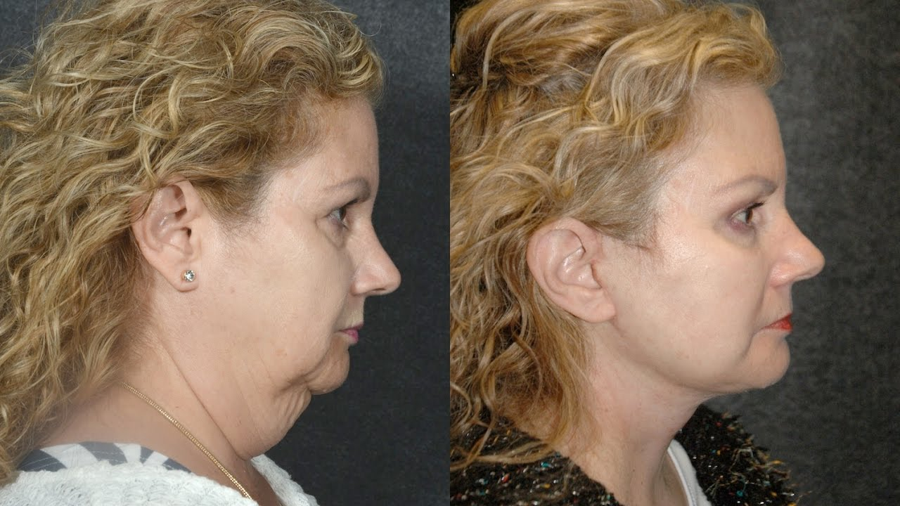 Face Lift Before and After Photos QuickLift Facelift Videos Gallbladder sludge ultrasound pictures