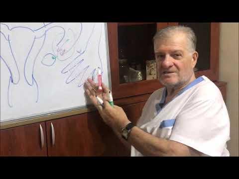 Непроходимость маточных труб-новейшее решение проблемы - фертилоскопия (гидролапароскопия)