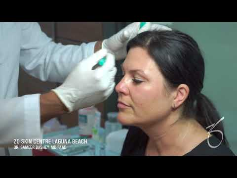 Botox for Wrinkles and Fine Lines on the Face at ZO Skin Centre Laguna Beach