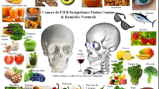 Cancer Oculaire - Symptômes Moins Connus et Remèdes Naturels