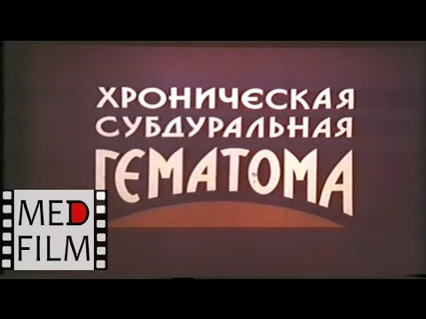 Гематома хроническая субдуральная © Chronic Subdural Hematoma