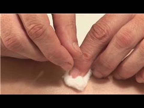 Acupuncture & Health: Acupuncture Help for Weight Loss