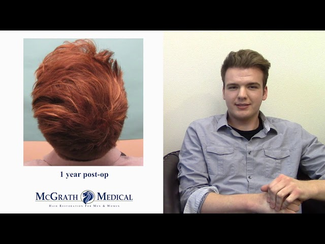 Hair Transplant Results - Case Study of Young Male Hair Loss Patient