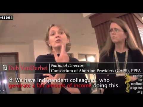 Planned Parenthood #Guilty of Selling Baby Body Parts for Profit One Year Later #PPSellsBabyParts