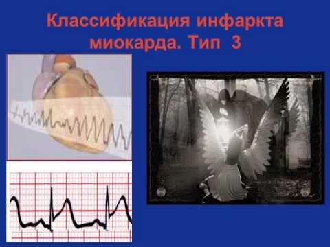 Острый инфаркт миокарда Классификация и Диагностика