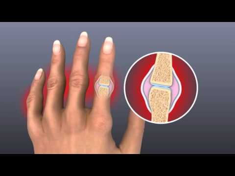 The Pain, Swelling And Stiffness of Rheumatoid Arthritis