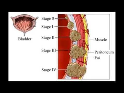 Как лечить и вылечить рак мочевого пузыря