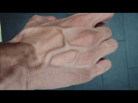 The Love Doctors - Hand Veins Moving Around Is A Little Strange!