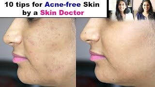 10 Must-Follow Skin Care Tips for Acne-Free Skin by a Skin Doctor || Slick and Natty