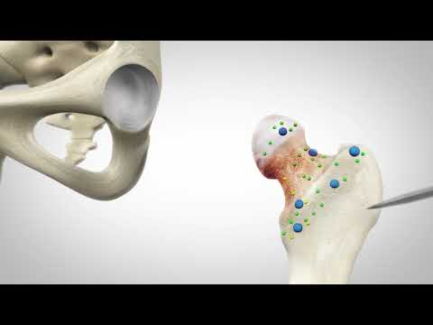 Mako Robotic Total Hip Replacement | El Camino Health