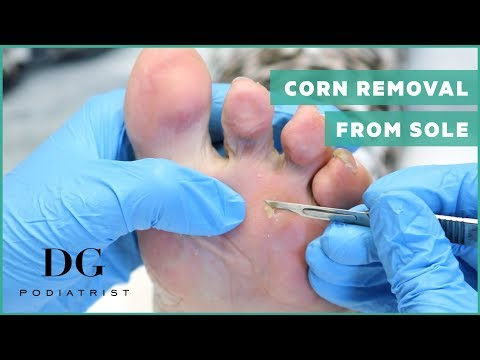 Sweet granny and her deep corn removal from sole - YouTube